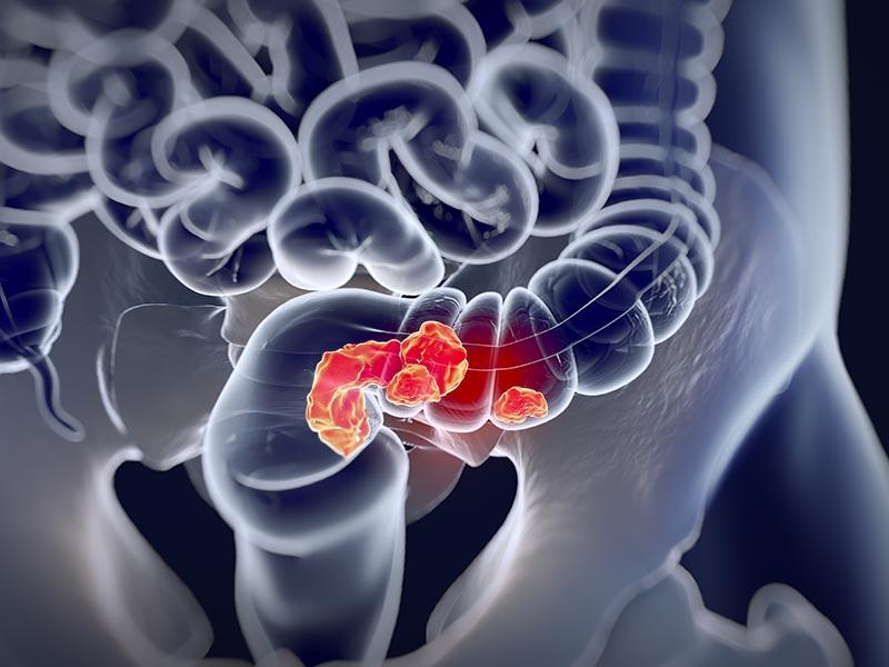 tumeur colon rectum cancer chirurgie lille louviere