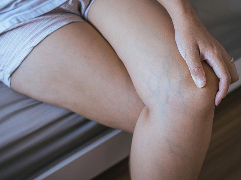 varice jambe traitement chirurgie lille louviere