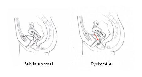 prolapsus vessie schema chirurgie lille louviere