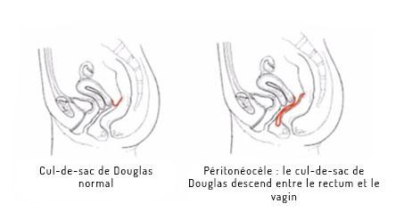 prolapsus peritoine schema chirurgie lille louviere