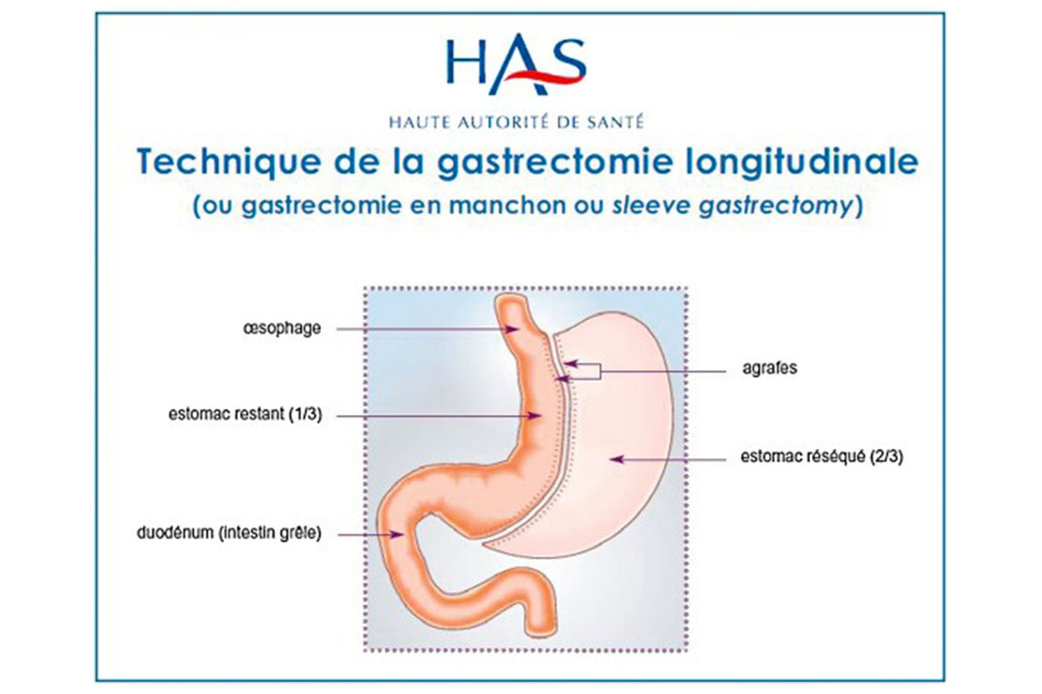 sleeve obesite chirurgie lille louviere has