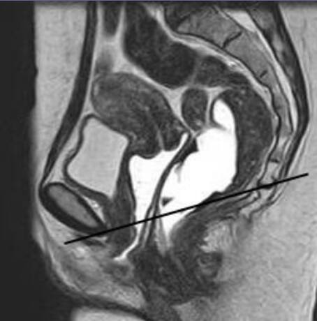 irm descente organe prolapsus pelvis chirurgie lille louviere