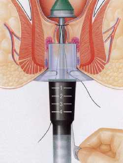 hemorroide longo chirurgie lille louviere