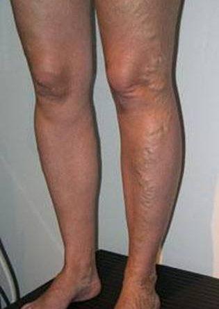 varice jambe chirurgie lille louviere